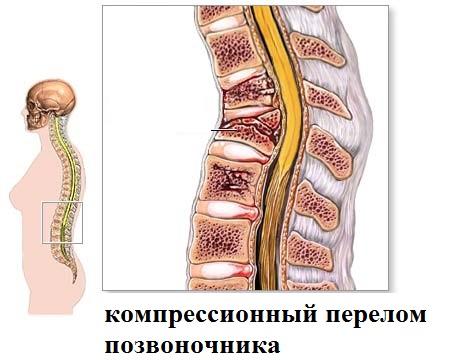 2 вида корсетов при компрессионном переломе спины, как носить. Противопоказания