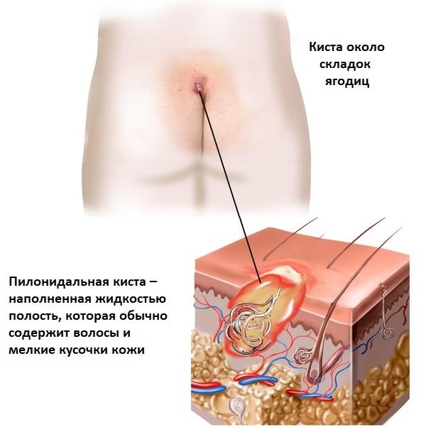 8 причин появления копчиковой кисты или свища