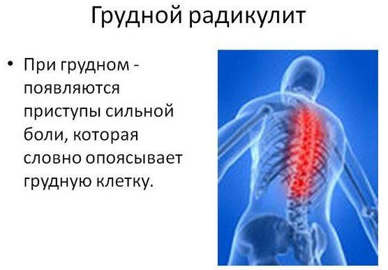 Радикулит грудного отдела позвоночника 7 симптомов и лечение