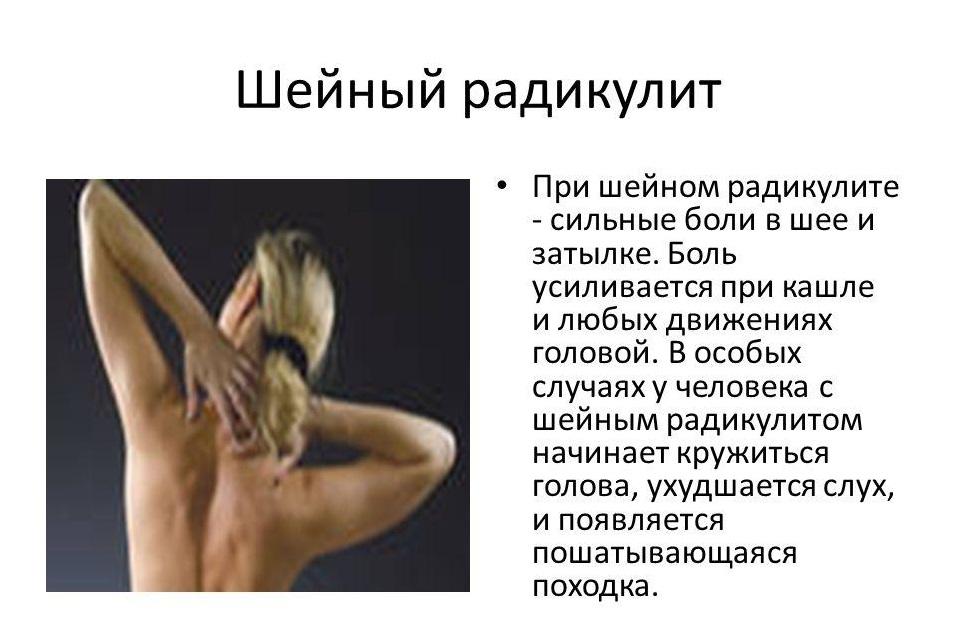4 симптома шейного радикулита какие бывают осложнения?