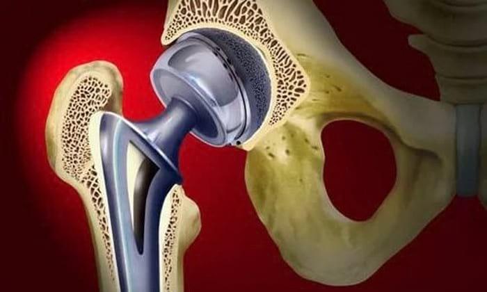 11 осложнений замены тазобедренного сустава. Типы эндопротезирования