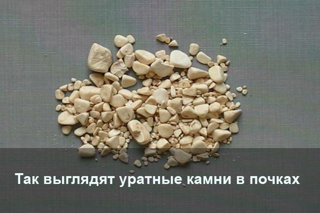 Уратные камни в почках