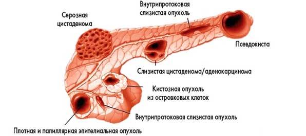 Цистаденомы поджелудочной