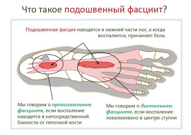 Почему возникает сильная боль в пятках? Чем Вы можете быть больны?