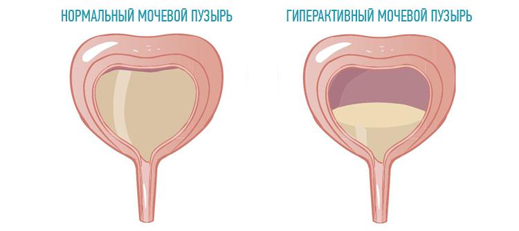 giperaktivnyj-mochevoj-puzyr
