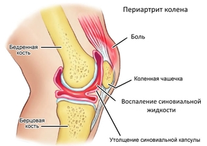 Признаки заболевания коленного сустава
