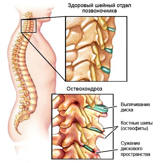 Почему замедляется мозговой кровоток при шейном остеохондрозе? Препараты, которые помогут
