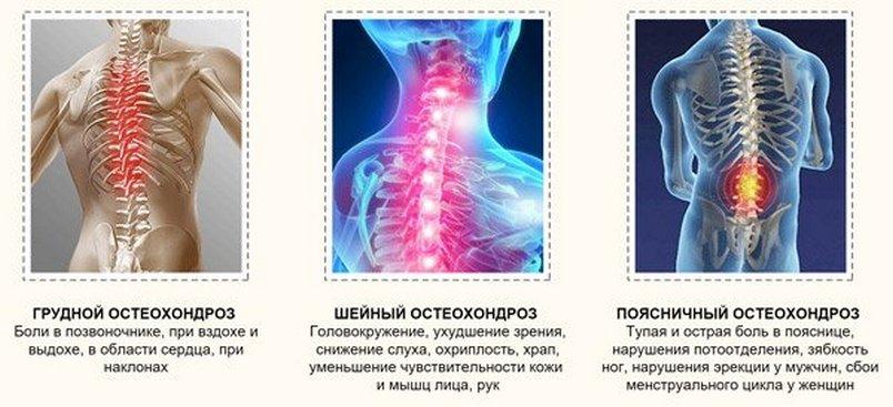 3 типа жесткости ортопедических матрасов при остеохондрозе как выбрать?