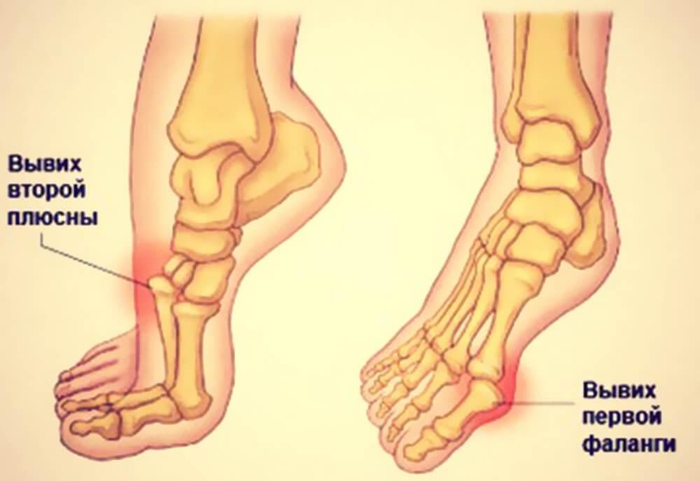 6 видов вывиха стопы стадии травмы и правильное лечение