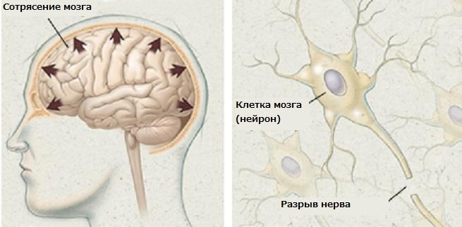 Что в мозгу