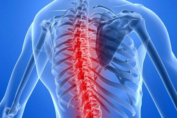 Спинная сухотка 12 симптомов и профилактика. Чем опасна для спинного мозга?