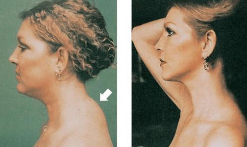 Можно ли убрать холку на шее (вдовий горб), как это сделать безопасно?