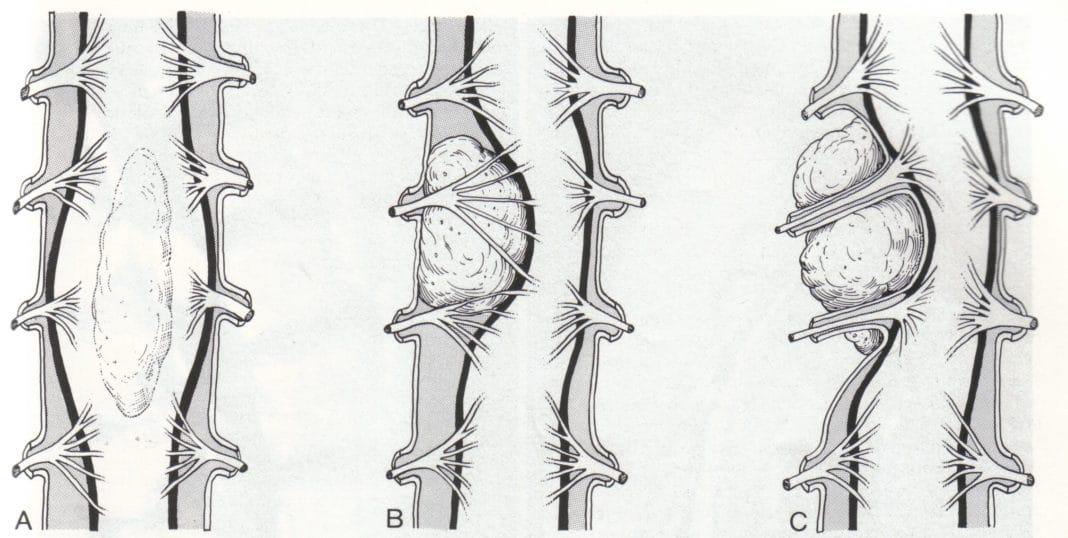 рак спинного мозга признаки
