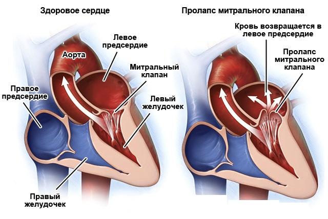 Что такое пролапс митрального клапана (ПМК) 1 степени?