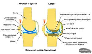 Артроз 3 стадии колена