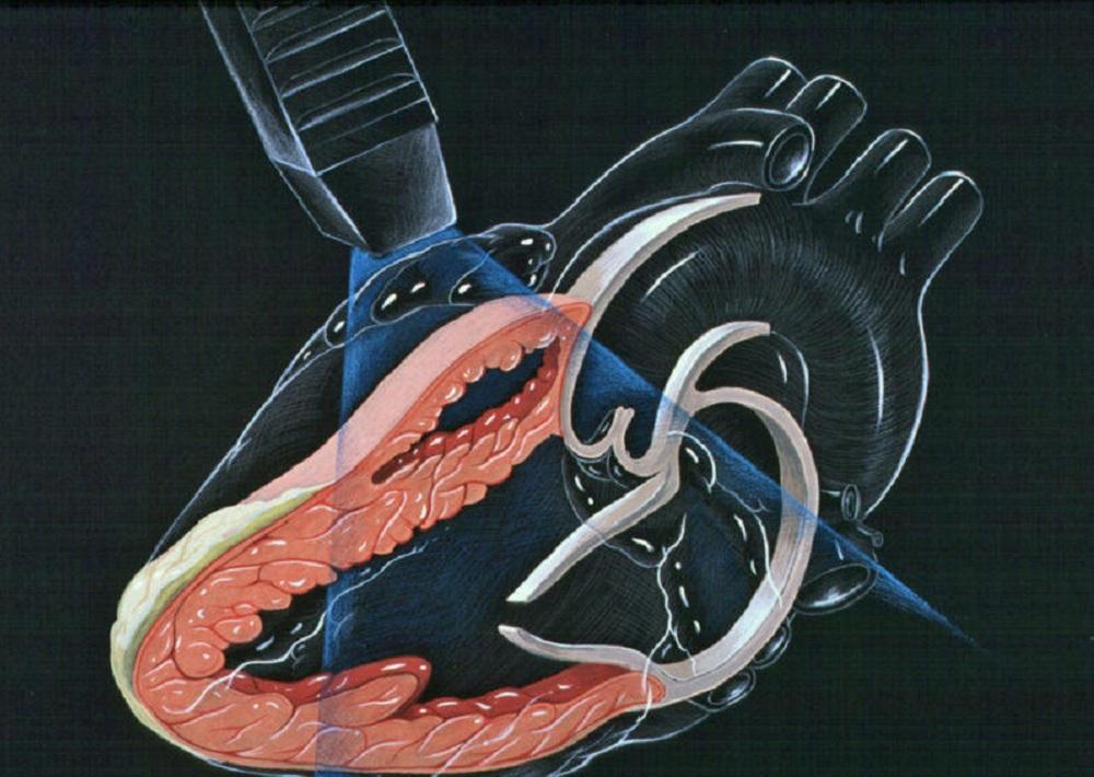Узи сердца эхокардиография