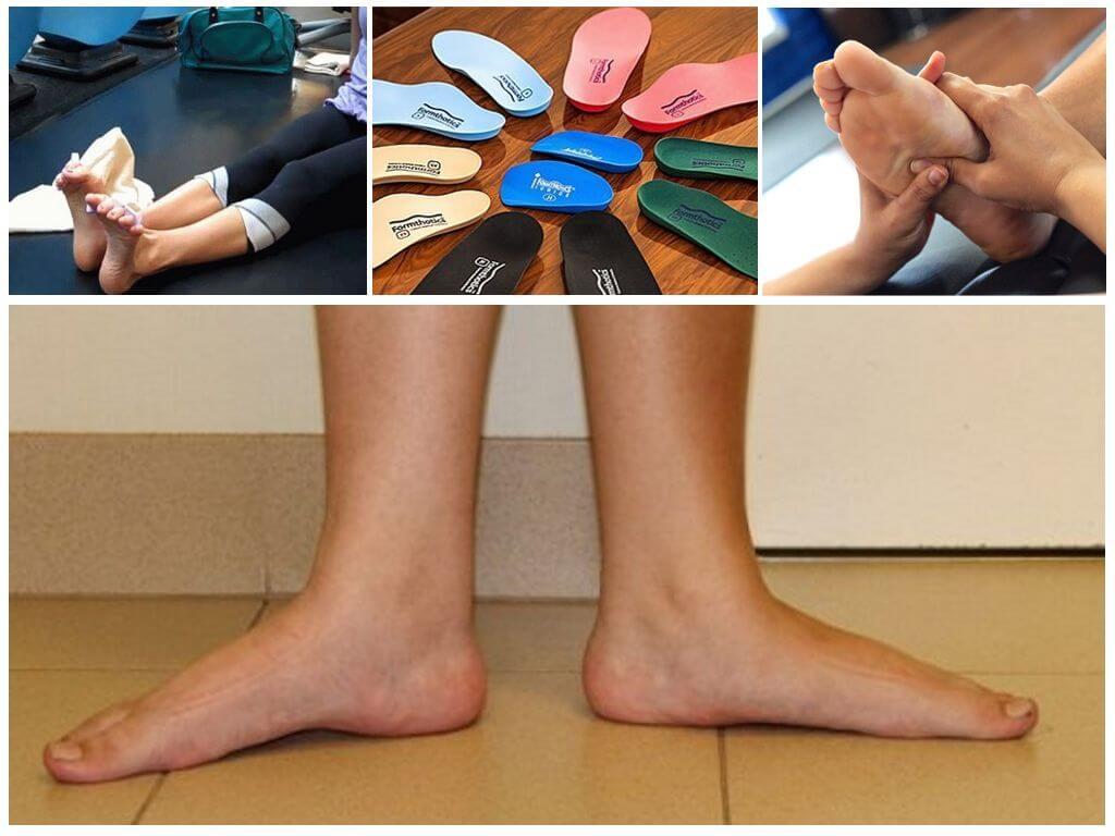 Лечение плоскостопия у взрослых и детей, как определить заболевание?