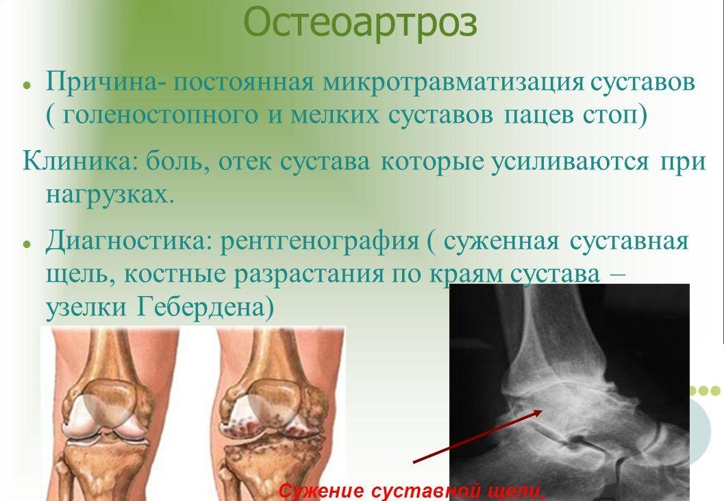 Остеоартроз голеностопного сустава 3 степени и лечение