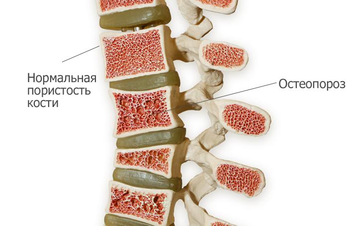8 симптомов и причины остеопороза позвоночника. Как лечить, не усугубив?