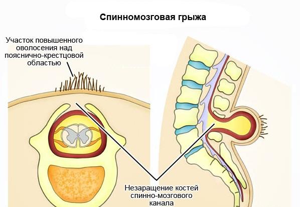 Спинномозговая грыжа врождённая и приобретённая, как лечить?