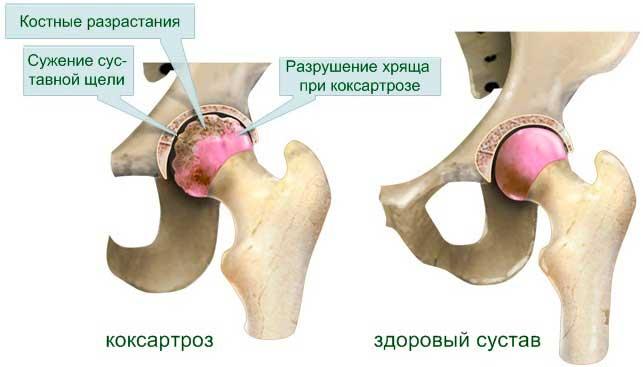 Виды уколов при коксартрозе тазобедренного сустава. 6 принципов лечения
