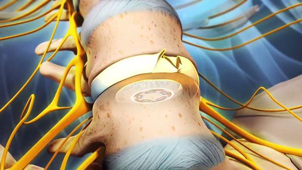 Остеохондроз межпозвоночных дисков: лечение и симптомы