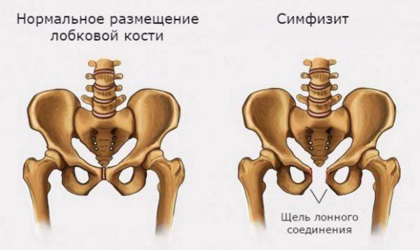 Боль в лобковой кости (лонном сочленении) при беременности и после неё