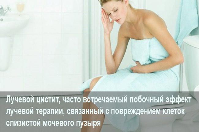Лучевая болезнь мочевого пузыря