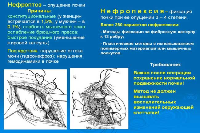 Причины нефроптоза