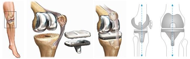 6 самых эффективных видов реабилитации после эндопротезирования коленного сустава