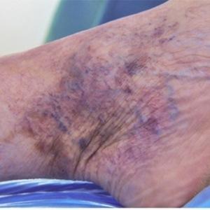 Заболевания сосудов нижних конечностей