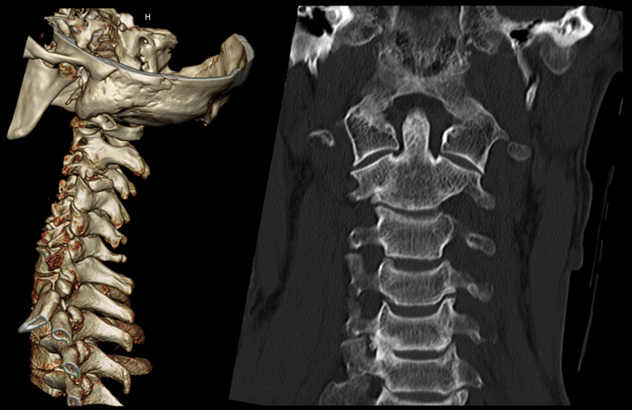 КТ спины (позвоночника) что это такое, 14 противопоказаний