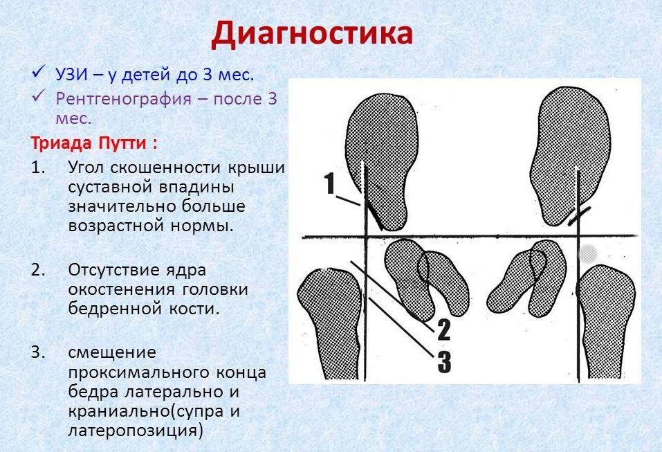 3 этапа нормального развития ядер окостенения тазобедренных суставов