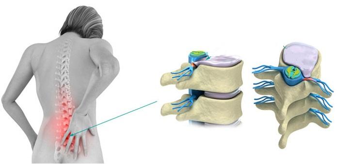 3 метода лечения спондилоартроза пояснично-крестцового отдела позвоночника