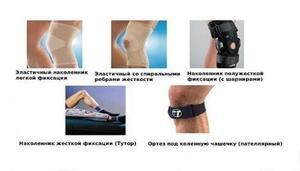 Наколенники при артрозе колена
