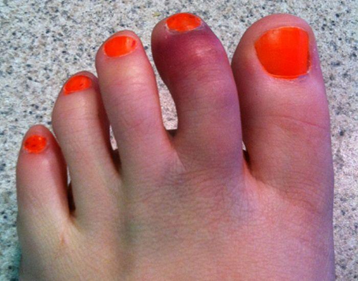 Как понять что сломан палец на ноге 3 признака