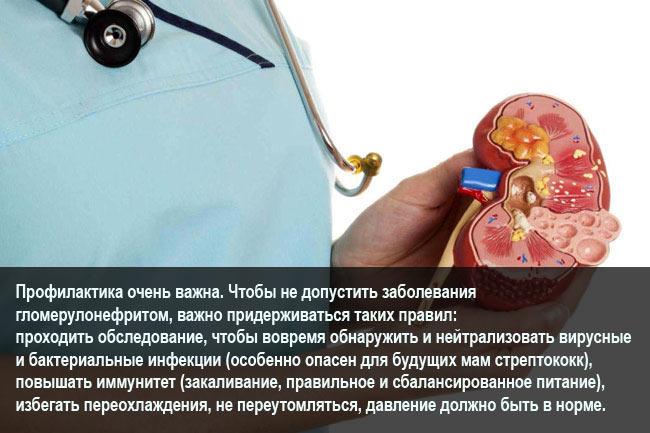Профилактика гломерулонефрита