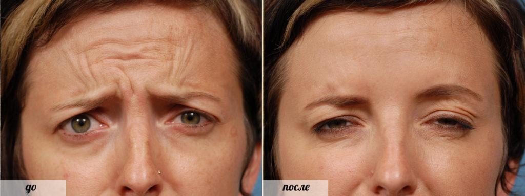 Фото до и после уколов
