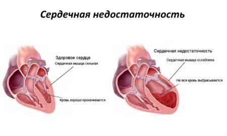 Изменение показателей артериального давления при сердечной недостаточности