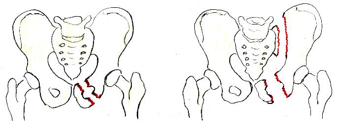 6 видов переломов лобковой кости. Последствия