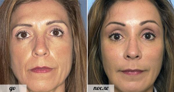 Фото до и после инъекций
