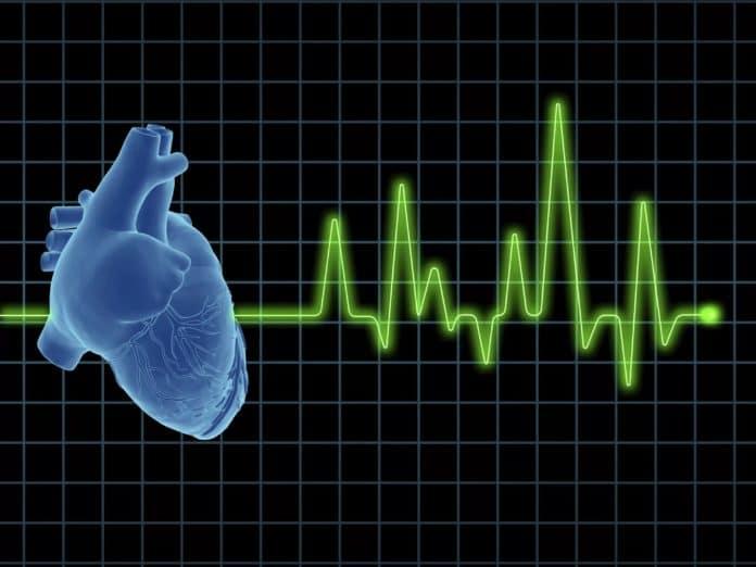 Блокада ножки сердца: насколько это может быть опасно?