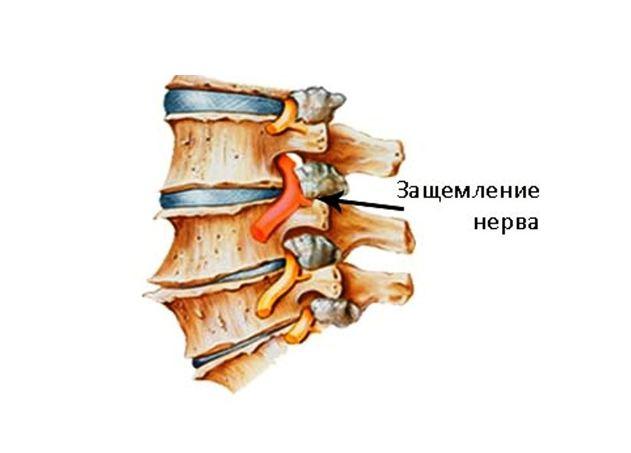 Как определить защемление нерва в грудном отделе. 5 признаков