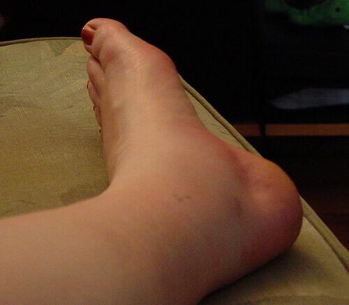 4 причины отека лодыжки после перелома как долго держится опухоль?