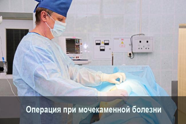 Операция при мочекаменной болезни