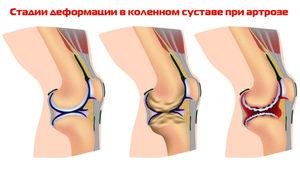 Как снять воспаление суставов