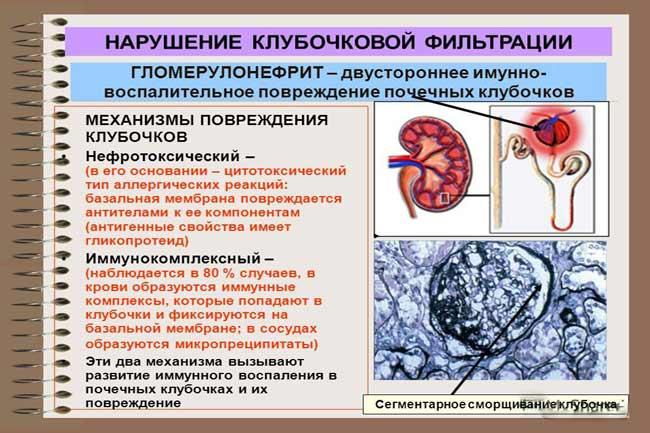 Воспаление почечных клубочков