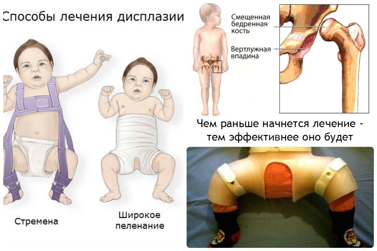 7 причин незрелости тазобедренного сустава у новорожденных