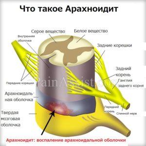 Описание арахноидита