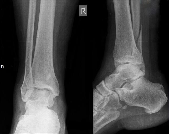 Перелом лодыжки со смещением нужна ли операция?